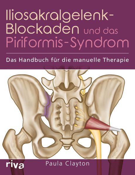 Iliosakralgelenk-Blockaden und das Piriformis-Syndrom