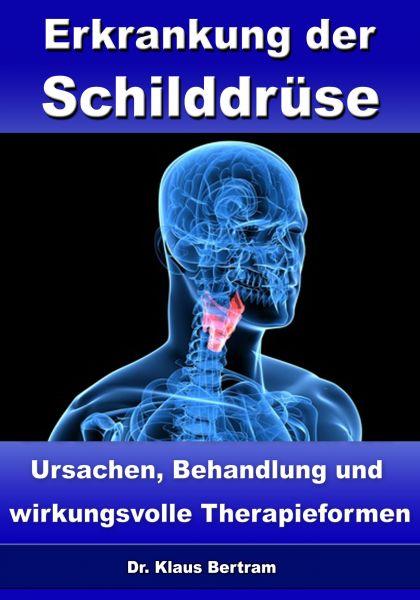Erkrankung der Schilddrüse – Ursachen, Behandlung und wirkungsvolle Therapieformen